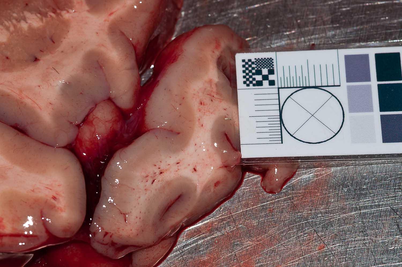 Перелом бедра+жировая эмболия