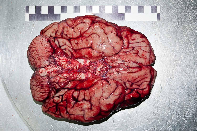 Головной мозг. Основание.