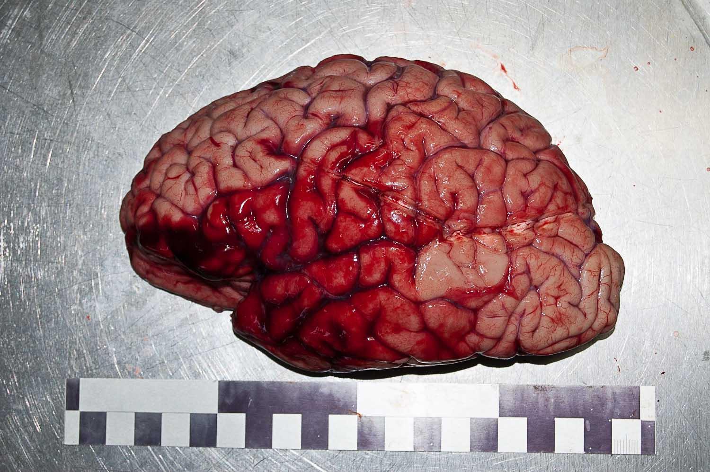 Головной мозг. Боковая поверхность левого большого полушария.