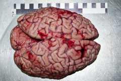 Головной мозг. Выпуклая поверхность.