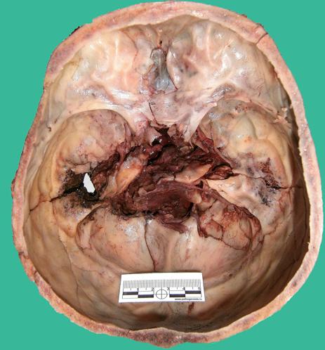 Огнестрельное дробовое ранение головы