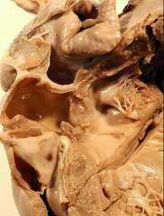 Врожденный бородавчатый эндокардит.