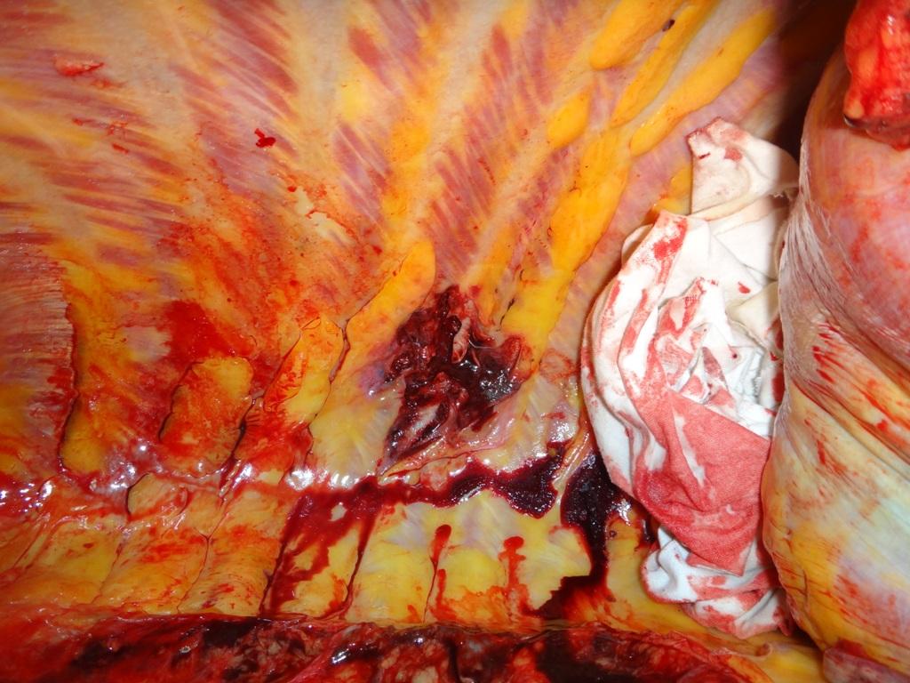 Дробовое ранение грудной клетки. Самоубийство