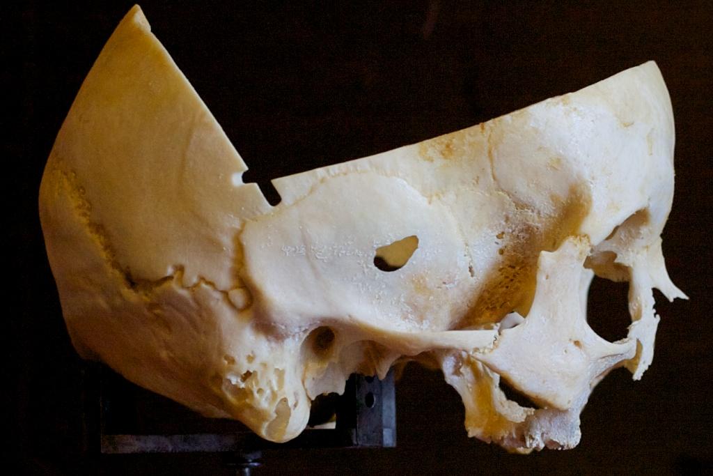 дефекты на чешуе височнной кости
