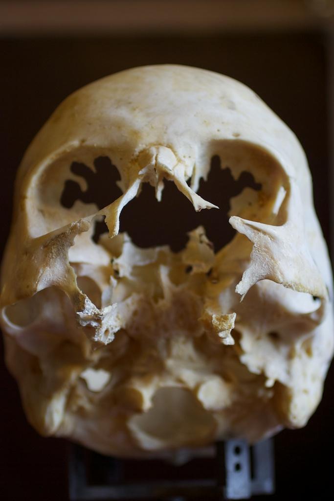 аномалия развития черепа