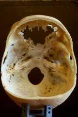 Вид со стороны полости черепа