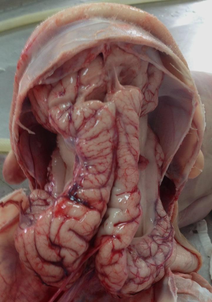 Врожденная аномалия головного мозга