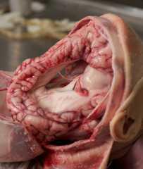 Врожденная аномалия ГМ с гигантской гидроцефалией
