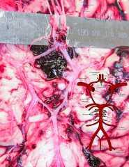 Аневризма сосудов основания мозга (arteria communicans anterior).