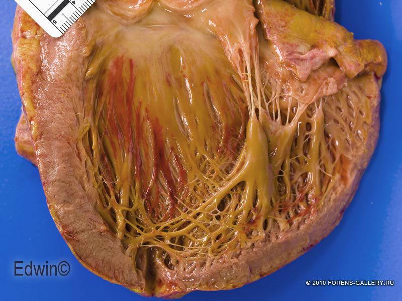 Кровоизлияния под эндокардом при остром перикардите