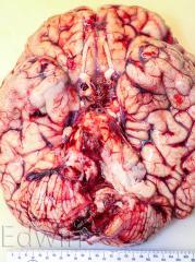 Головной мозг с базальной поверхности с полным разрушением продолговатого мозга