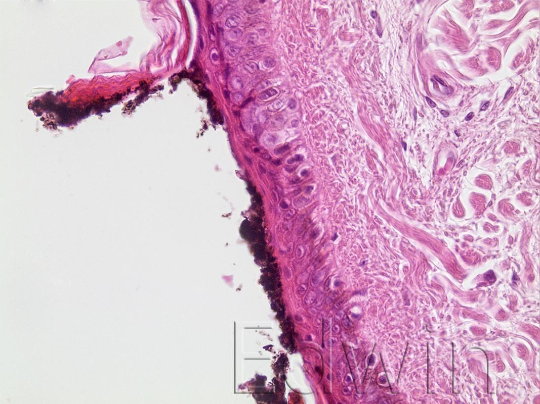 Отложения копоти на коже в области входной огнестрельной раны.