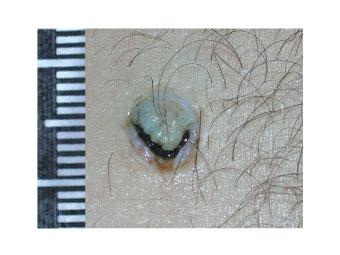 Повреждения нелетальным оружием калибра 9-10мм