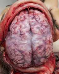 Болезни нервной системы