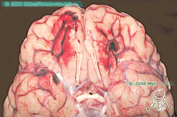 Противоударные ушибы головного мозга