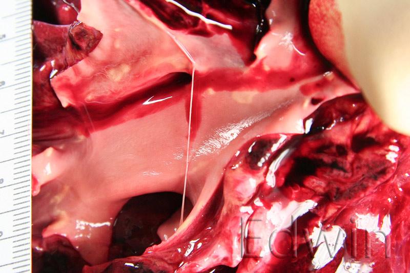 Легочная артерия. В просвете нить соединительной ткани. ТЭЛА.