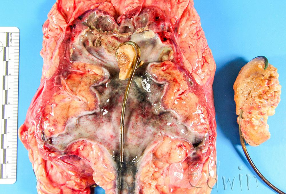 Камни почки и мочевого пузыря вокруг мочевыводящего катетера.
