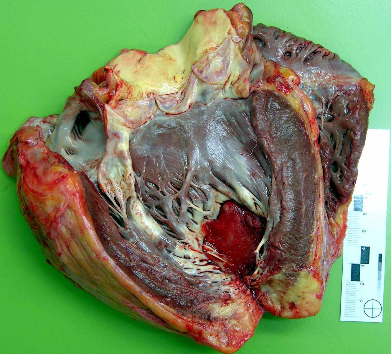 Пристеночный тромб левого желудочка сердца