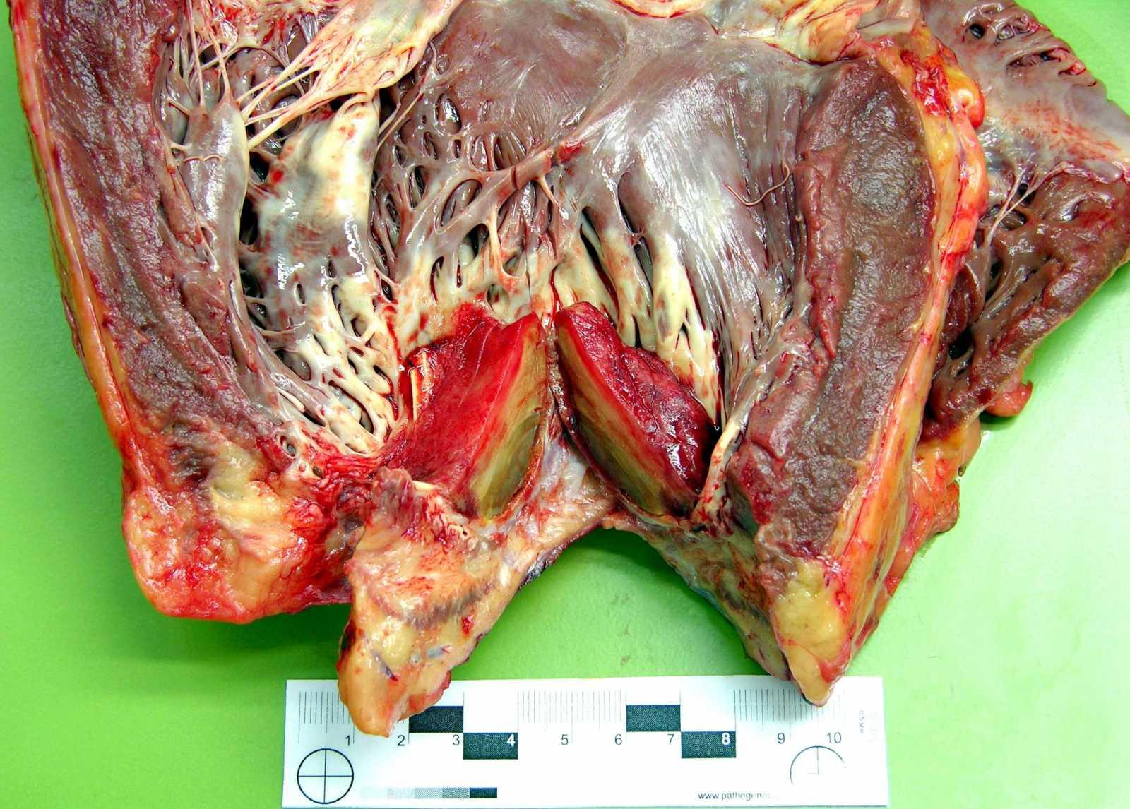 Пристеночный тромб левого желудочка сердца (на разрезе)