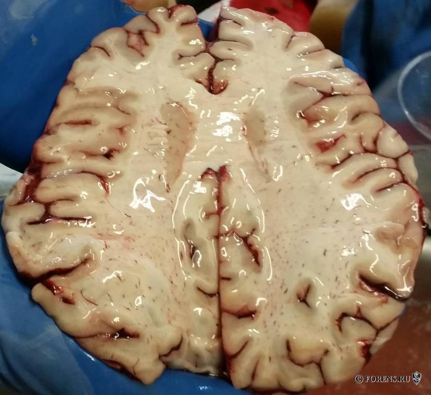 Аноксическое повреждение головного мозга