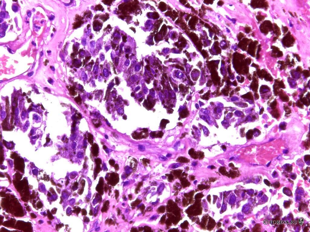 Метастазы меланомы, гистологическая картина