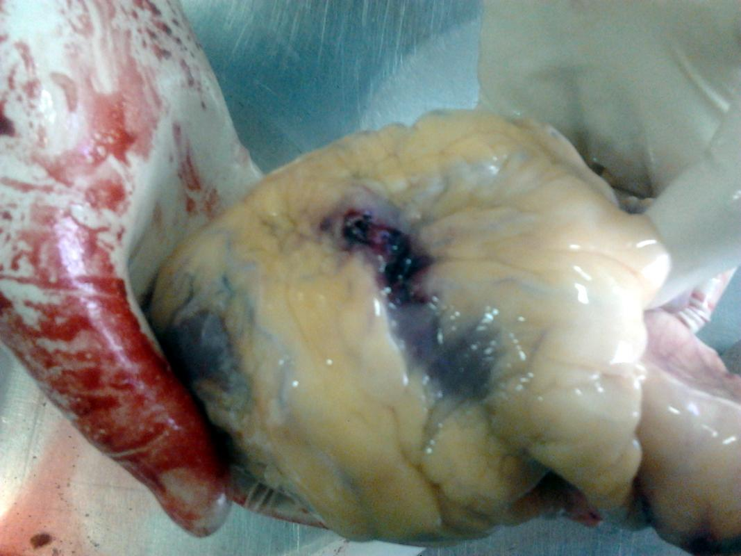 Колотое ранение груди, самоубийство