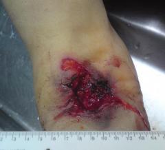 Колото-резаные раны локтевого сгиба, самоубийство
