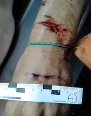 Резаные раны предплечья, самоубийство