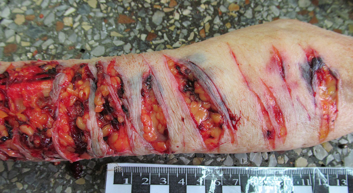 Резаные раны предплечья.Самоубийство
