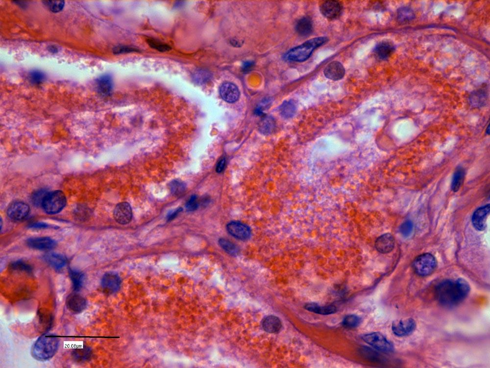 Пигментный нефроз при отравлении грибами