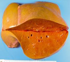 Отравление грибами (чешуйница из рода lepiota)