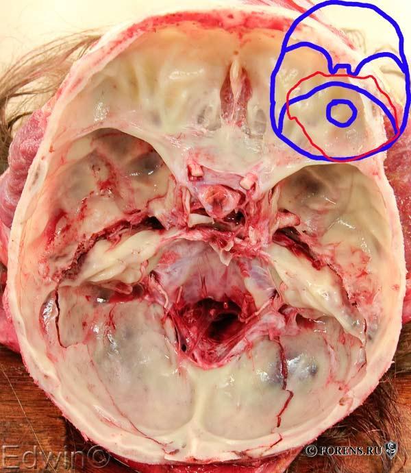 Кольцевидный перелом основания черепа при травме в салоне автомобиля