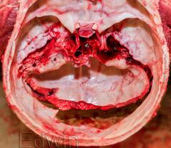 Кольцевидные переломы основания черепа