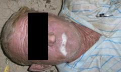 Повреждения, смерть от механической асфиксии (утопление)