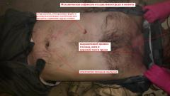 Повреждения, смерть от механической асфиксии