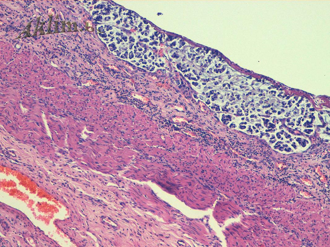 Метастазы перстневидноклеточного  рака