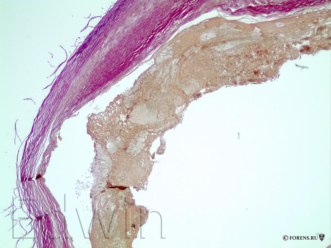 Разрыв аневризмы сосудов основания головного мозга