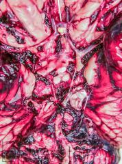 Субарахноидальное базальное кровоизлияние при разрыве аневризмы a. communicans anterior