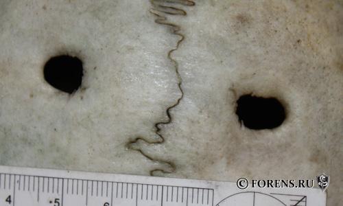 Foramina parietalia permagna (большие теменные отверстия)
