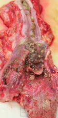 Желудочное содержимое в верхних дыхательных путях