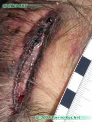 Ушибленная рана теменной области