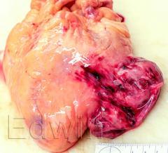 Гигантская аневризма сердца