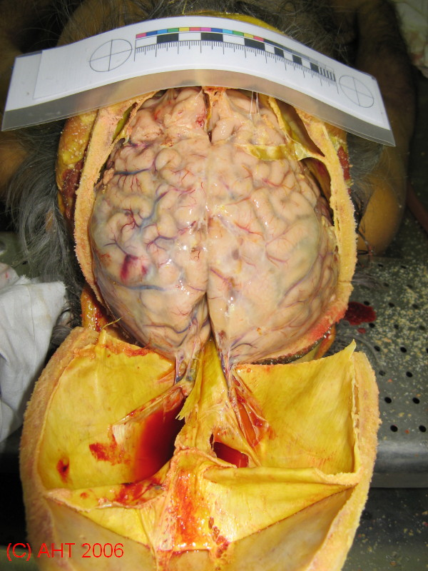 Головной мозг и оболочки
