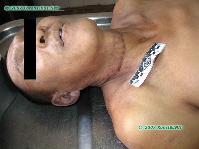 Сдавление органов шеи петлей из ремня газораспределительного механизма. Видны индивидуальные особенности травмирующего предмета.