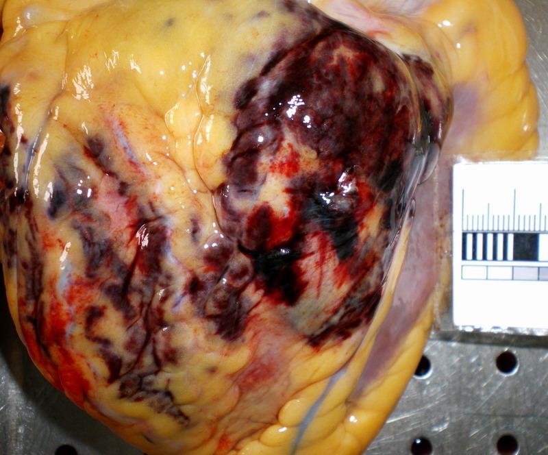 Разрыв задней стенки левого желудочка