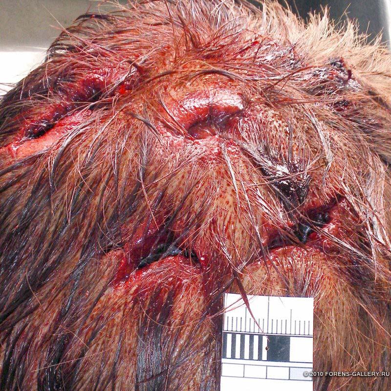 Множественные раны головы