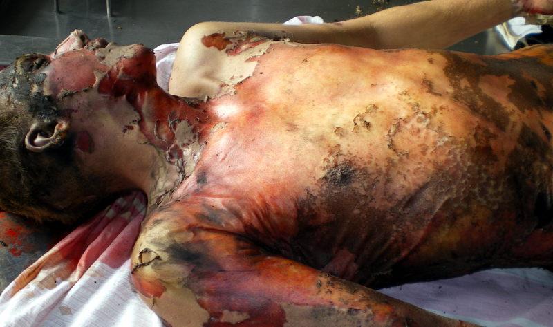 Обширные термические ожоги тела