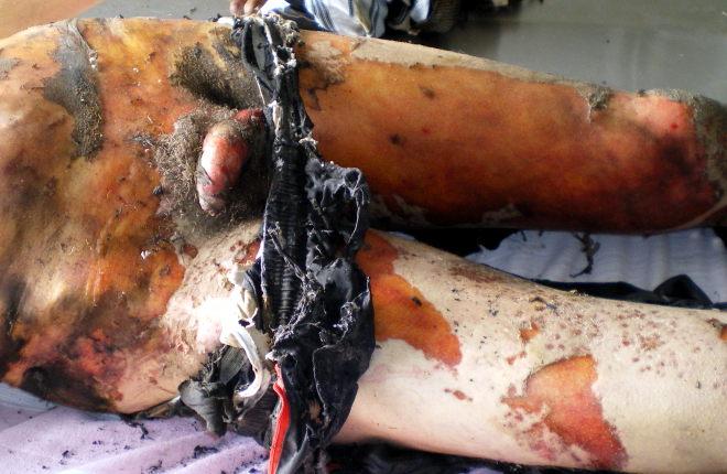 Обугливание одежды и термические повреждения половых органов