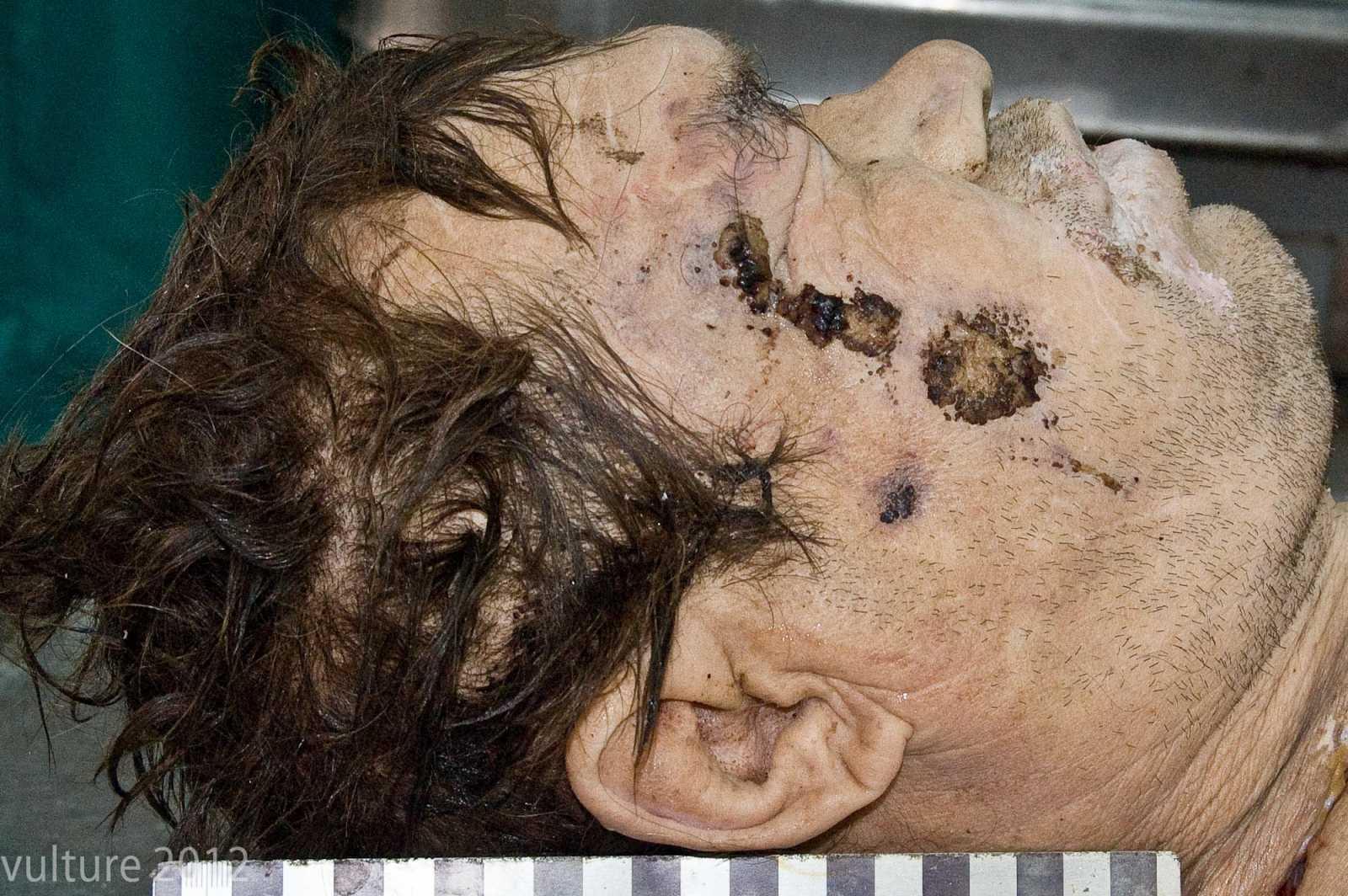 Повреждения на лице трупа