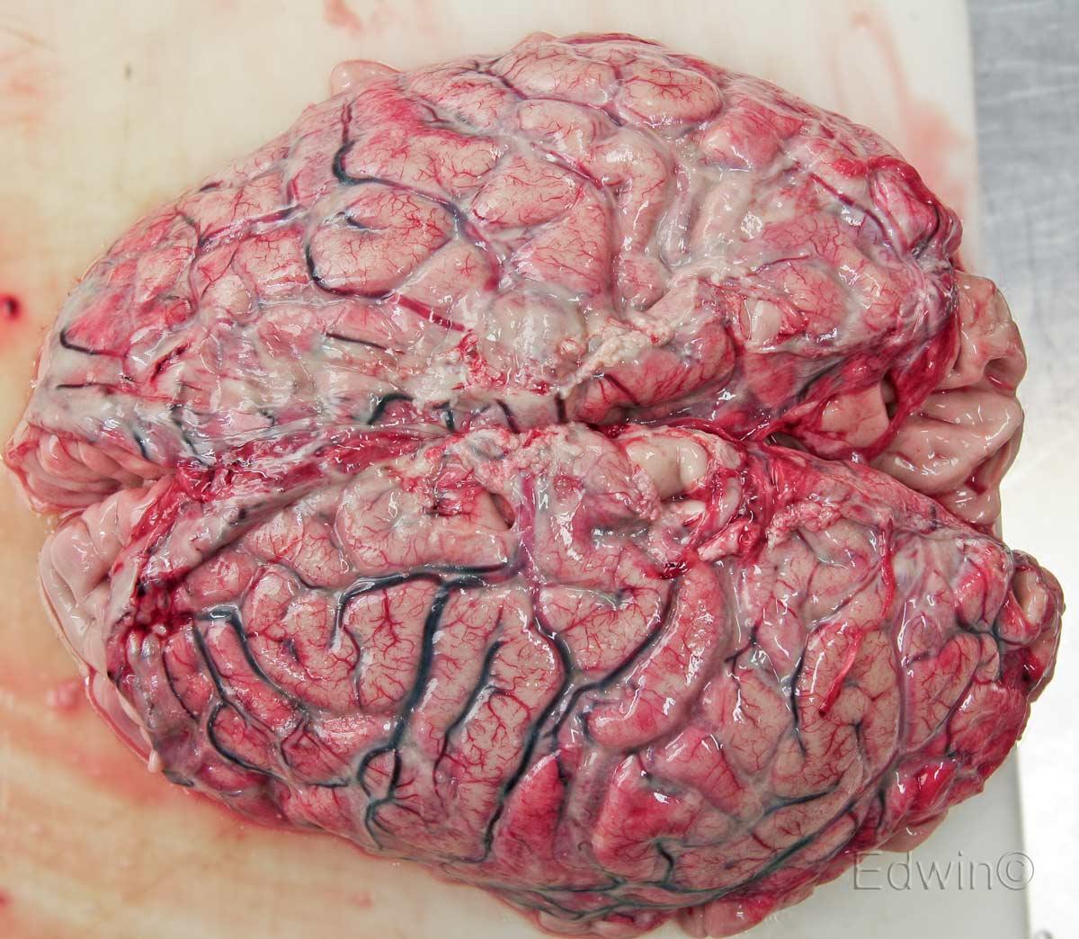 Головной мозг сверху